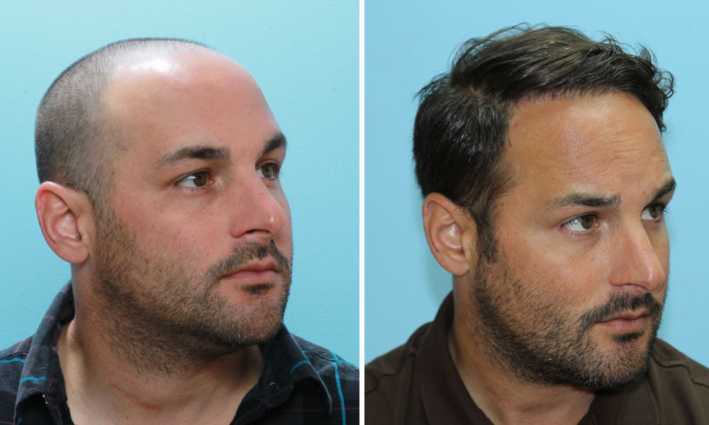 Male Hair Loss Natural Cure