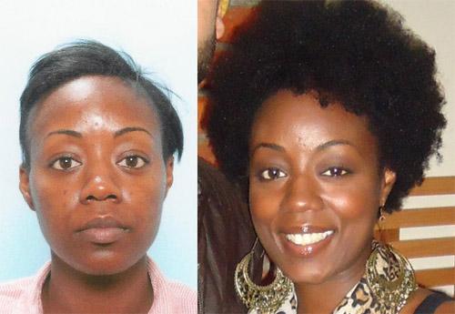 African American Female Hair Transplant Testimonial