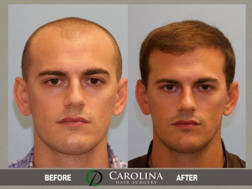 hair transplant front view